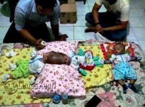 Bayi Kembar Siam, Nadhira Alifa Putri dan Nadhiba Aisyah Putri (dalam keadaan dempet) dan Nadhiva Alinka Putri (bayi yang lahir terpisah). foto: Aji Anugraha