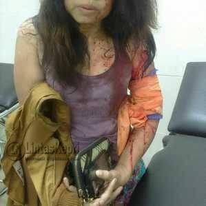 Korban Yetty Srihajar Riawati, saat mendapatkan pertolongan dari Polsek Bukit Bestari.
