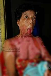 Asminiza (49), Penderita luka bakar serius butuh bantuan dermawan, f.ajianugraha